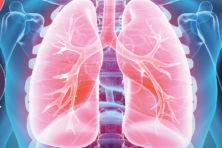 Dé longkanker bestaat niet meer