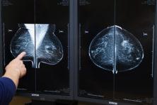 'We moeten wat doen aan overdiagnose van borstkanker'