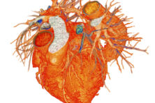 Schade na hartaanval komt mogelijk door eiwit