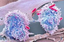 Oplichtende kankercellen helpen arts bij operatie