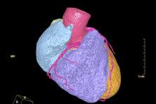 Diagnostiek met radioactieve stof bij hartpatiënten